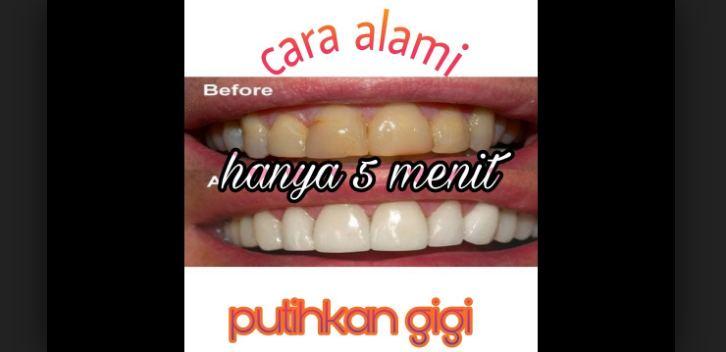 Cara Memutihkan Gigi Pakai Teh